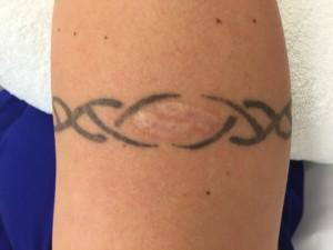 Neprofesionaliai atliktas ir randus palikęs tatuiruočių šalinimas