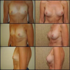 Krūtų didinimas implantais (2)