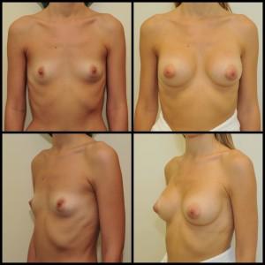 Krūtų didinimas implantais (4)