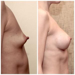 Krūtų didinimas implantais (5)