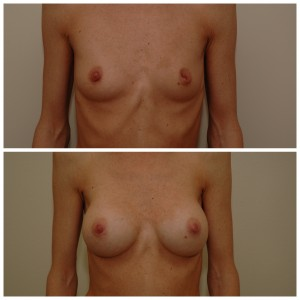Krūtų didinimas implantais (6)