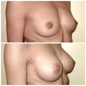 Krūtų didinimas implantais (7)