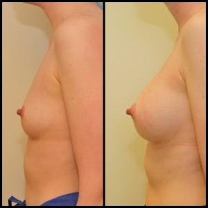 Krūtų didinimas implantais (9)