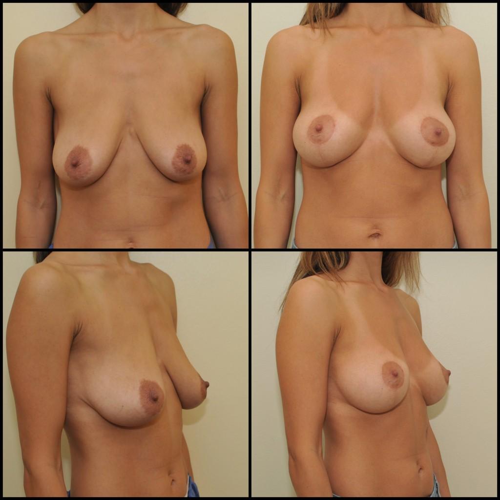Krūtų pakėlimo operacija