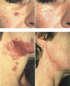 Lazerinė ir estetinė dermatologija klinikoje SUGIHARA
