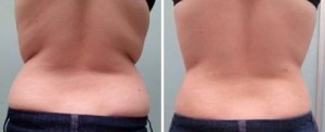Kūno stangrinimas ir apimčių mažinimas lazeriu klinikoje SUGIHARA