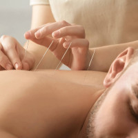 akupunkturos procedura