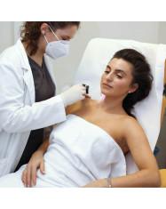 Dermatologo  konsultacija dėl apgamų su dermatoskopija