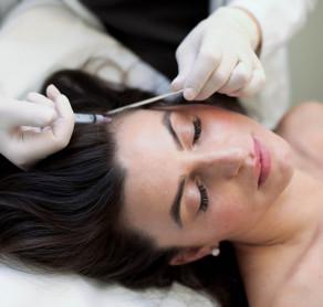 Plaukų slinkimas - tai dažna bėda, su kuria susiduria tiek moterys tiek vyrai, ypatingai ši problema išryškėja pasibaigus žiemos sezonui, po kurio yra dažna vitaminų, mikroelementų stoka.  ????⚕️SUGIHARA gydytoja dermatologė Jurgina Ūselienė, pastebėjusiems suaktyvėjusį plaukų slinkimą, pirmiausia rekomenduoja pasitikrinti, ar netrūksta vitamino D3, geležies ir kitų vitaminų bei išsitirti skydliaukės hormonus.  Plaukų slinkimo gydymui gydytoja rekomenduoja rinktis PRP procedūras, kurios yra natūrali terapija plaukų slinkimui stabdyti.  ???? Kaip atliekama PRP porcedūra?  PRP porcedūros metu paciento kraujo plazma kas 0,5 - 1 cm maža adata suleidžiama į galvos odą. Plazmoje esantys trombocitų augimo faktoriai stabdo plaukų slinkimą, skatina augimą.   ???? Kokių rezultatų galima tikėtis?   Po PRP procedūrų kurso plaukai turėtų sustoti slinkti bei pradeda augti greičiau, padaugėja naujų plaukų. Rezultatą galima pastebėti praėjus maždaug 3 mėnesiams po gydymo pradžios.  Daugiau informacijos ir registracija:  ☎️+37069853901  ???? info@sugihara.lt