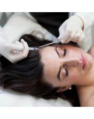mezoterapijos procedura plaukams