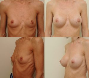 D. Radzevičiaus Krūtų didinimas implantais 3