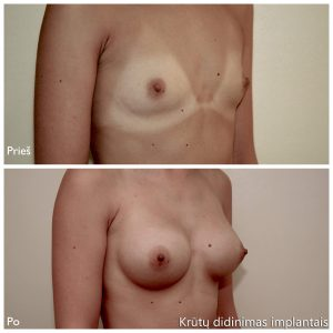 D. Radzevičiaus Krūtų didinimas implantais2