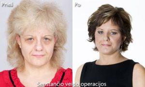 D. Radzevičiaus Senstančio veido operacijos