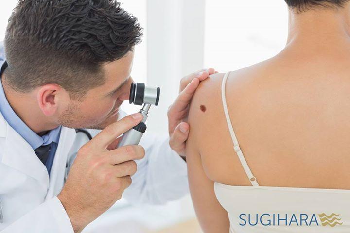Dermatologo konsultacija , apgamų tyrimas klinikoje SUGIHARA