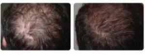 Plaukų Slinkimo gydymas klinikoje SUGIHARA