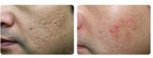 Lazerinė dermatologija klinikoje SUGIHARA