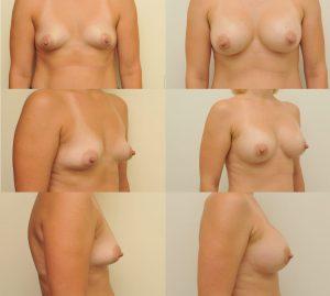D. Radzevičiaus Krūtų didinimas implantais 2