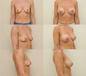 D. Radzevičiaus Krūtų didinimas implantais 4