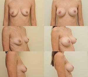 D. Radzevičiaus Krūtų didinimas implantais 5