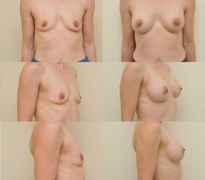 D. Radzevičiaus Krūtų didinimas implantais 6