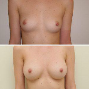D. Radzevičiaus Krūtų didinimas implantais 7