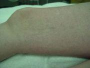 Kraujagyslinių darinių šalinimas klinikoje SUGIHARA