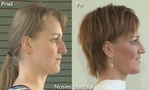 D. Radzevičiaus Nosies plastika