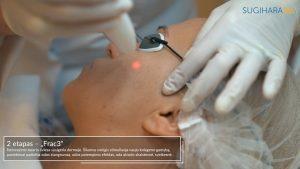 4D veido jauninimo procedūra